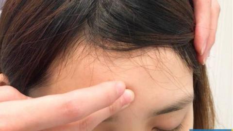 拆解3種黑眼圈顏色反映身體內臟問題!中醫師教你6大穴位按走萬年黑眼圈