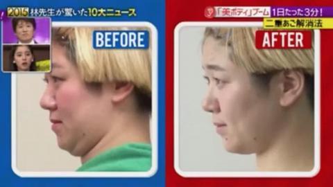 瞓錯枕頭有機會導致雙下巴!日本專家教你5秒瘦臉操 快速變尖臉