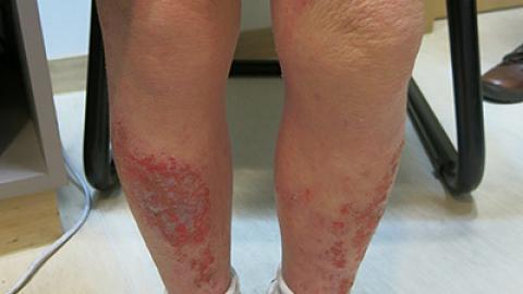 解構濕疹2大成因 皮膚專科醫生教你預防+治療方法