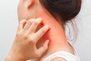 濕疹「老是常出現」?全球首支濕疹專用修護油試得過!