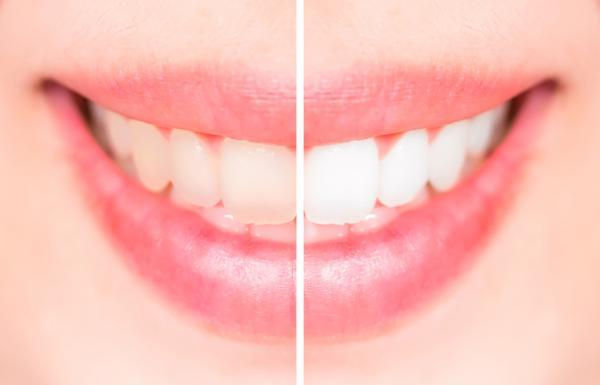 酸性飲品侵害牙齒?教你預防方法兼索取現金券