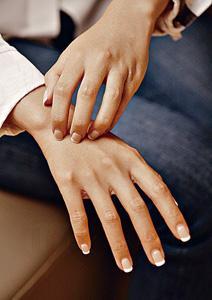 濕疹患者 忌亂用天然潤膚霜 醫生:部分或含防腐劑 敏感更嚴重