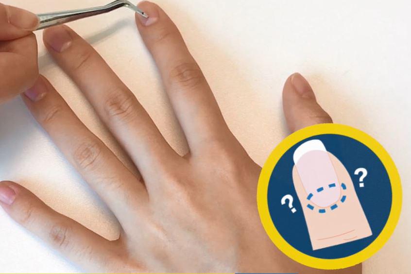 指甲月牙橫直紋代表咩?4大穴位還原健康指甲