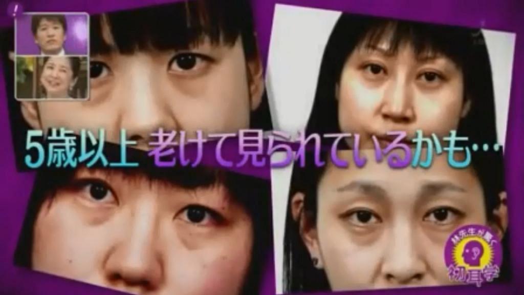 黑眼圈令人望落老5歲?!日本醫生教你奇招減退青色/茶色/黑色眼圈