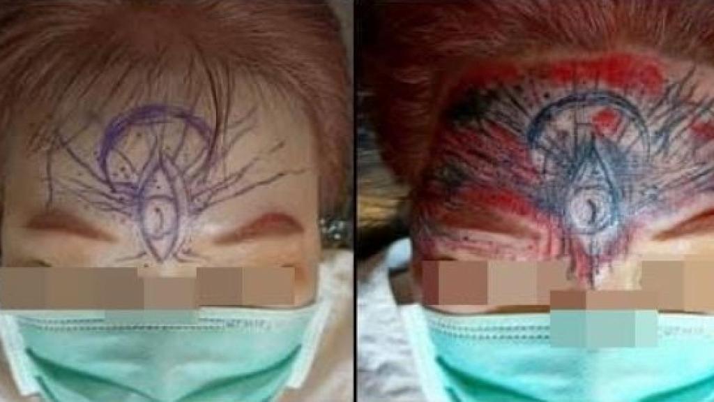 額頭紋身驚變第三隻眼 大媽崩潰唔想見人 紋身師辯稱:她刺完當下很滿意