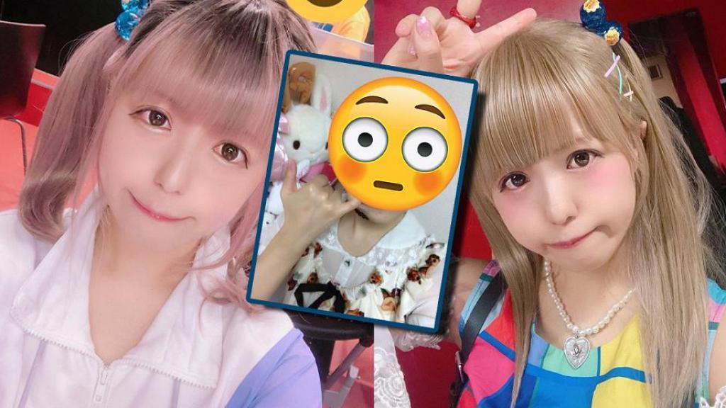 日本90後美少女驚現禿頭要戴假髮見人!小心6個壞習慣不知不覺造成脫髮危機