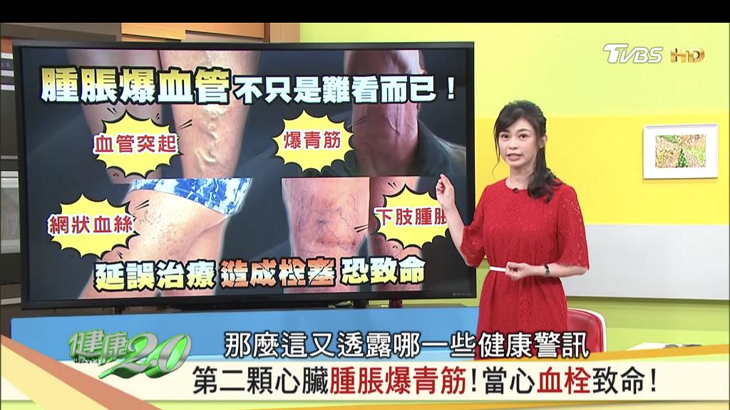 久站久坐易導致靜脈曲張暗藏致命危機 台灣物理治療師教授3個動作舒緩腿部腫脹