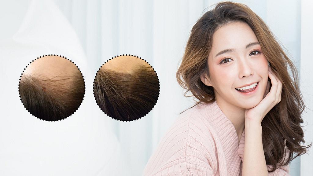 女生一定要知!2小時解決髮量少!必試美容界大熱「紋髮」