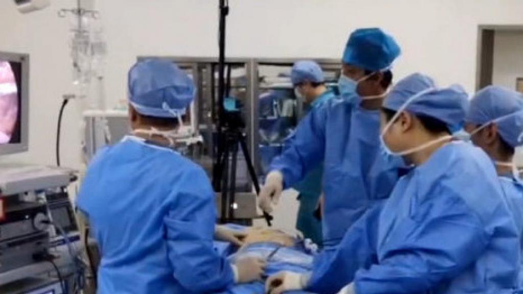 22歲女最長便秘30日 長年便秘持續肚痛腹脹 做切腸手術驚現10kg巨糞