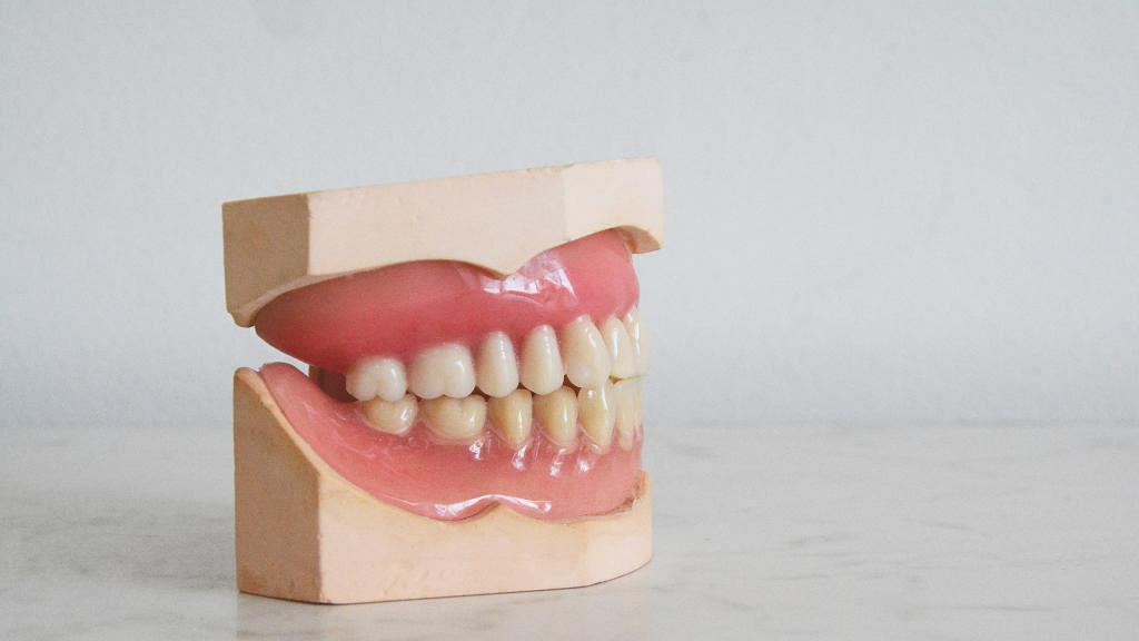 整牙女牙縫間藏士多啤梨籽近10日 檢查才發現已發芽 牙醫都嚇到 分析3個原因令果籽在口中發芽