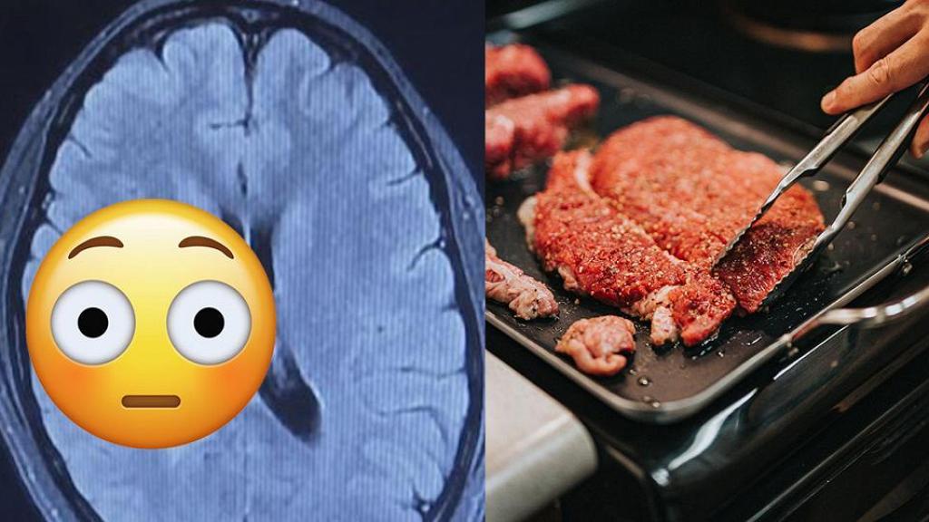 20歲女子疑曾吃未煮熟食物突然半身麻痺  求醫檢查驚揭腦部成千上萬寄生蟲產卵