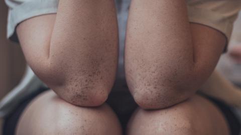 25歲男膝蓋無法自由伸直屈曲 恐怖擠出「牙膏」 醫生揭病人2大壞習慣患痛風