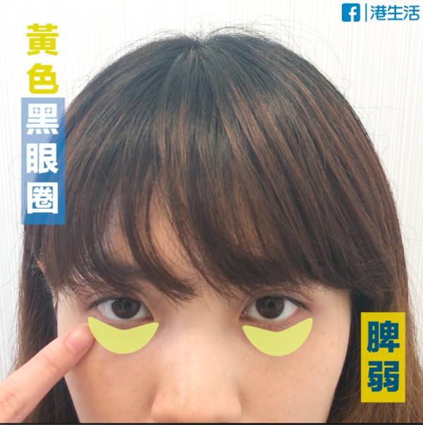 眼圈唔同色代表咩?6大穴位按走萬年黑眼圈