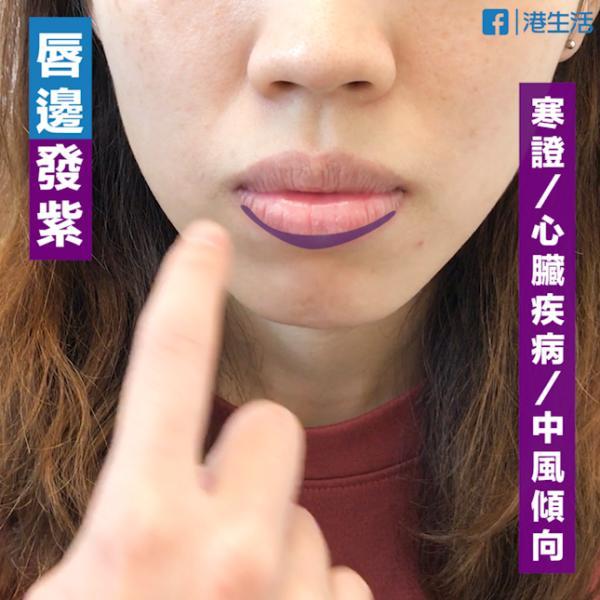 睇唇色檢查身體狀況 4大穴位回復水嫩紅唇